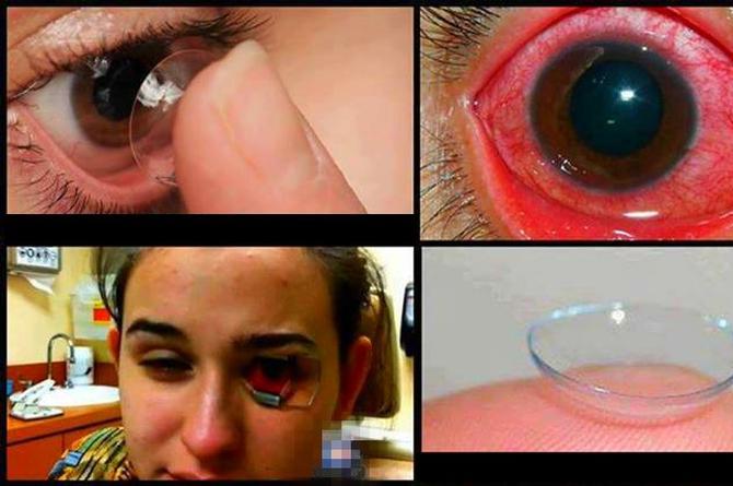 cara mengobati iritasi mata akibat softlens
